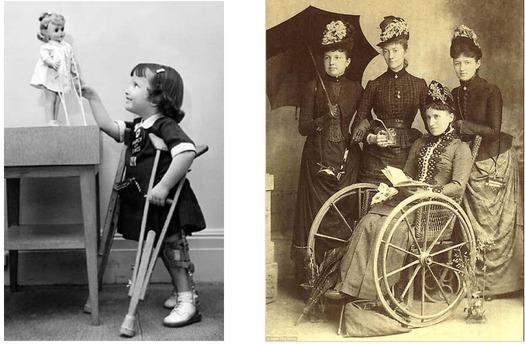 imagen antiguas de personas con discapacidad